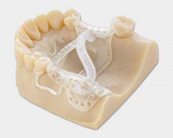 Zahnmedizinisches Modell des Objet30 Dental Prime