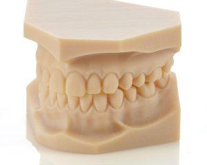 Die zahnmedizinischen Materialien des Objet30 Dental Prime ermöglichen präzise Modelle.