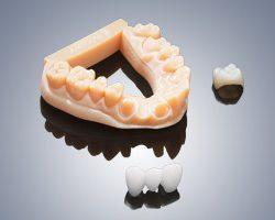 Dental-Serie Zahnmodell