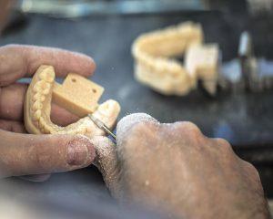 PolyJet 3D Druck Material für die Zahnmedizin.