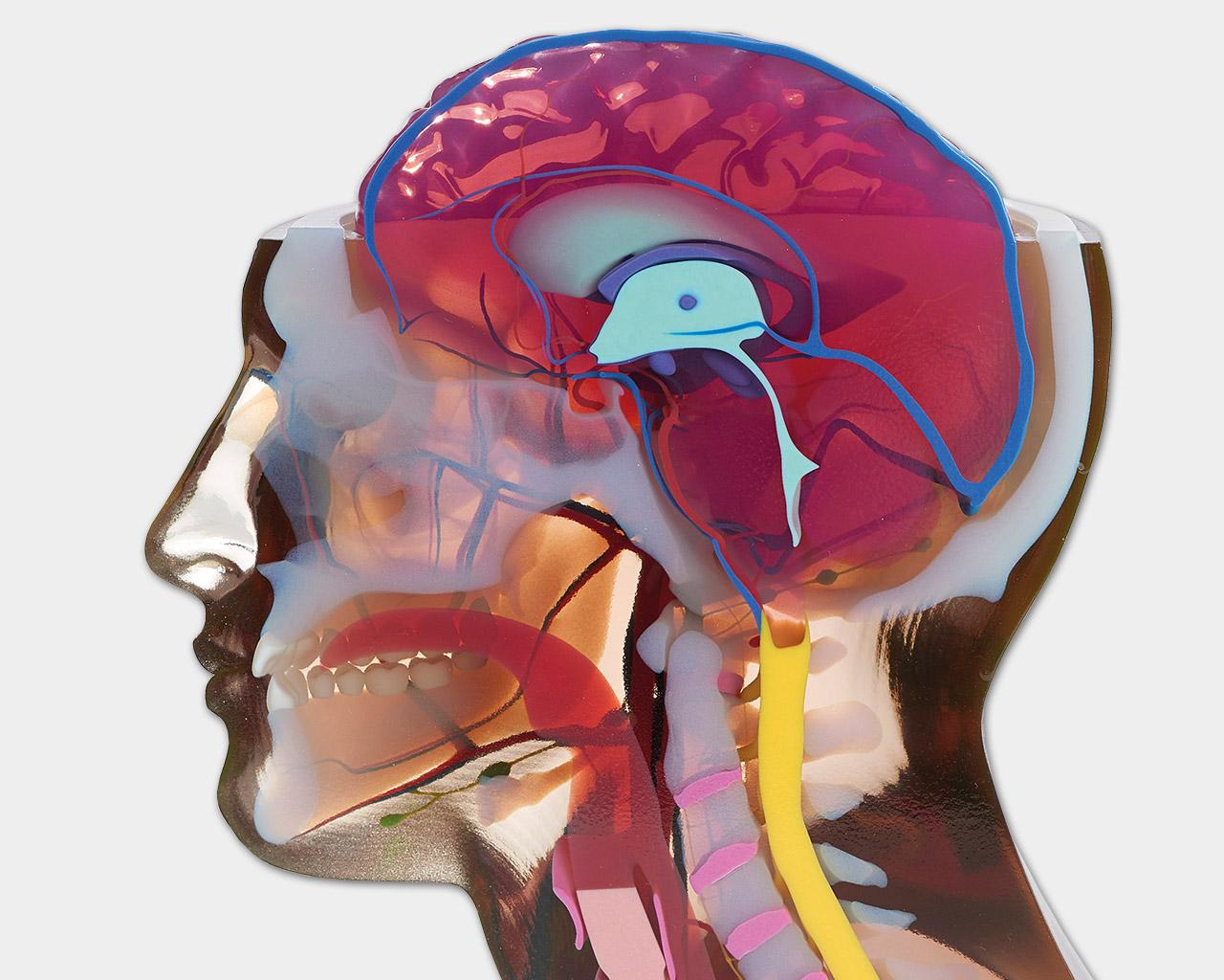 Vollfarb 3D Druck Anwendung Medizin