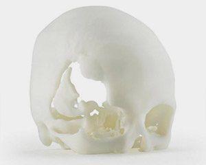 3D gedruckter Schädel aus ABS m30i