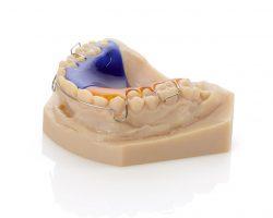 Dental Modell