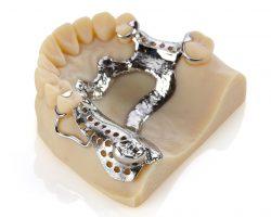 Fertigen Sie mit dem Objet30 Dental Prime präzise Modelle.