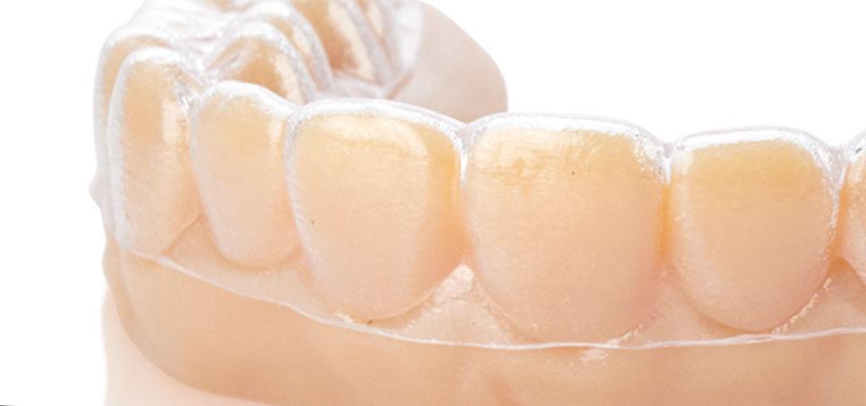 In der Zahnmedizin wird der 3D Druck beispielsweise für die Anpassung von Clear Aligner Zahnschienen verwendet.