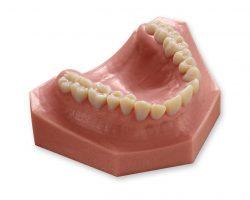 Erzeugen Sie Dentalmodelle mit naturgetreuer Optik.