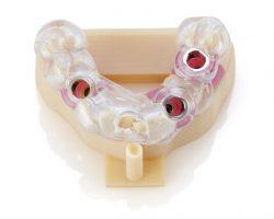 Erstellen Sie mit Multimaterial Druckern von Stratasys auf einer Bauplattform ein komplettes zahnärztliches Implantatsmodell.
