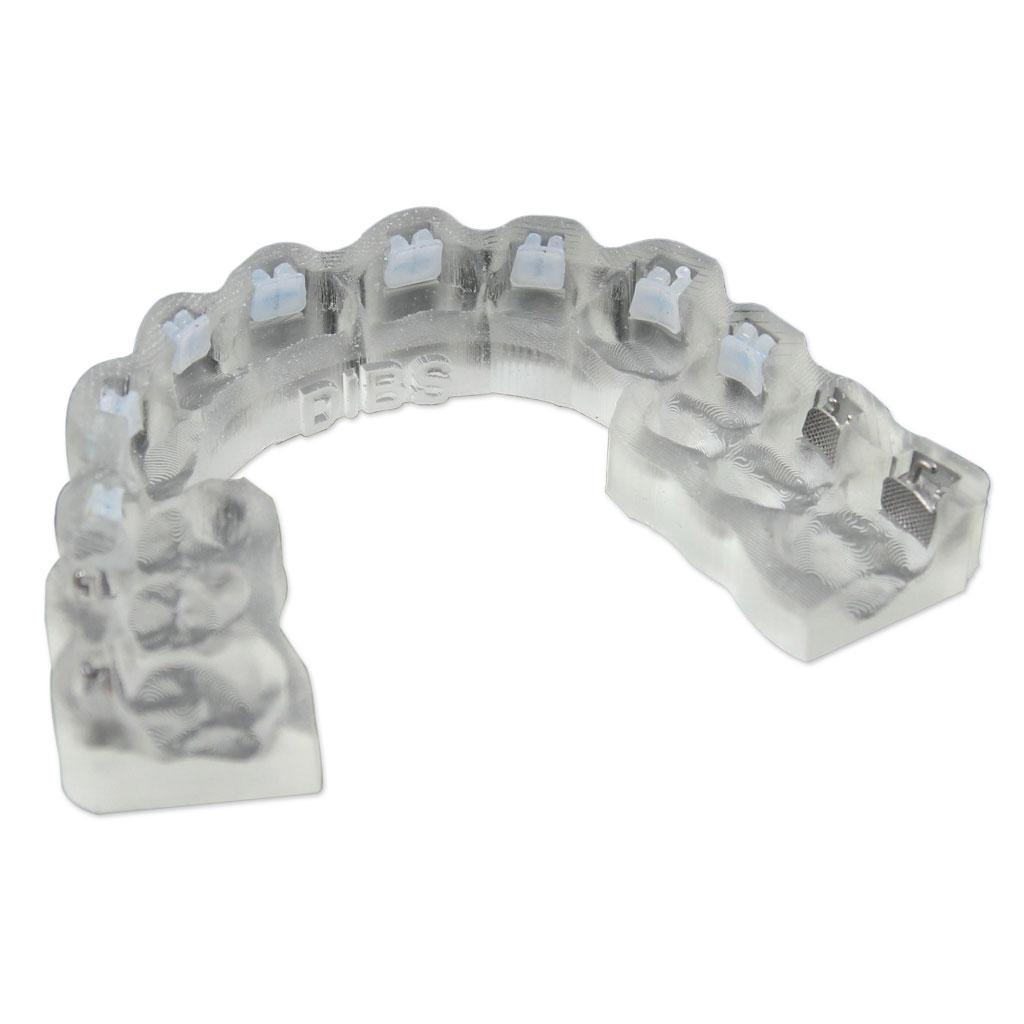 Dentalmodell aus biokompatiblem MED610 PolyJet-Material